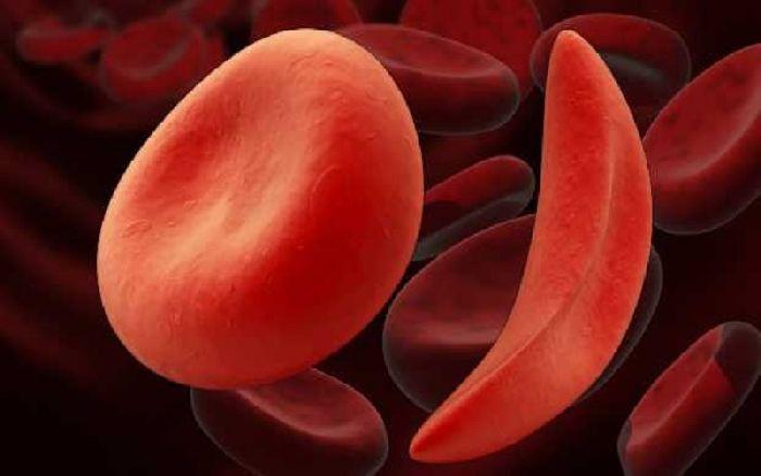 Серповидная анемия – пример генной мутации